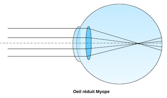 4605726fdc image d'un oeil myope nécessitant des lunettes